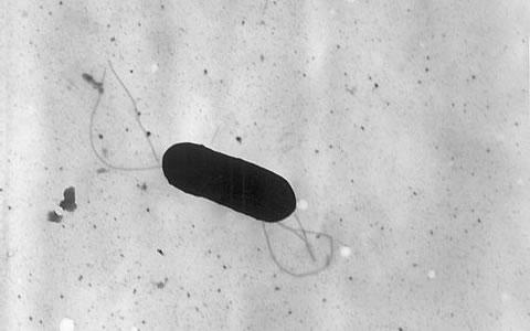 Listeria Monocytogenes en Chile, 2013